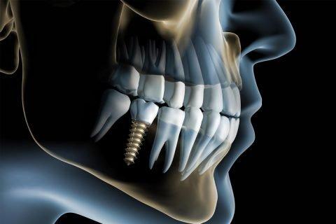 Implantologia Osteintegrata - Home